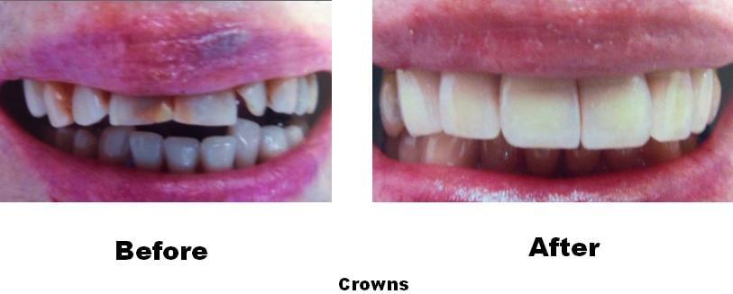 Before & After - Belva Dental, Daly City Dentist