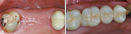 Dental Bridges - Belva Dental, Daly City Dentist