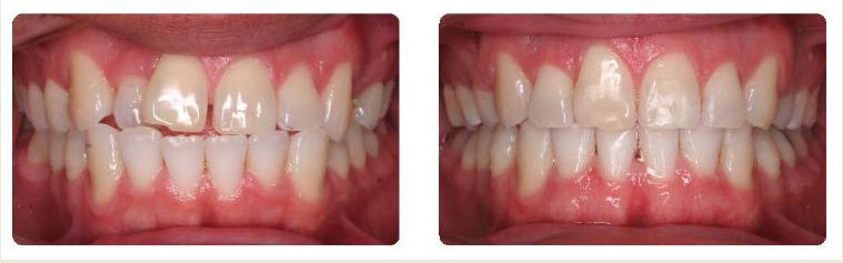 Invisalign - Belva Dental, Daly City Dentist