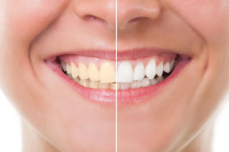 Teeth Whitening - Belva Dental, Daly City Dentist